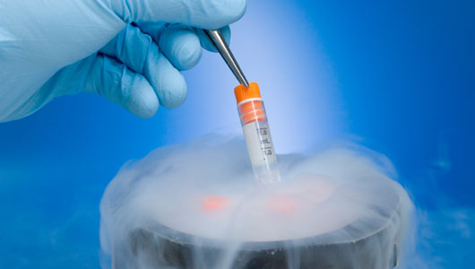 Trial to determine benefits of frozen embryo transfer